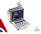 Portable B/W Ultrasound Scanner